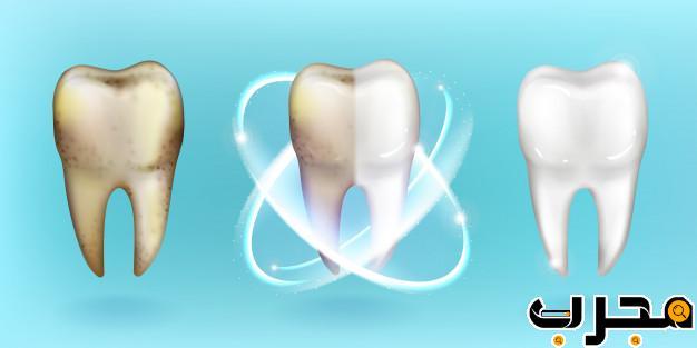 كيفية تبييض الأسنان في المنزل 10 طرق امنه وسريعة